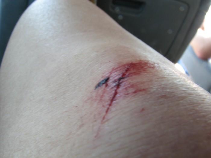 pretty cool battle wound
